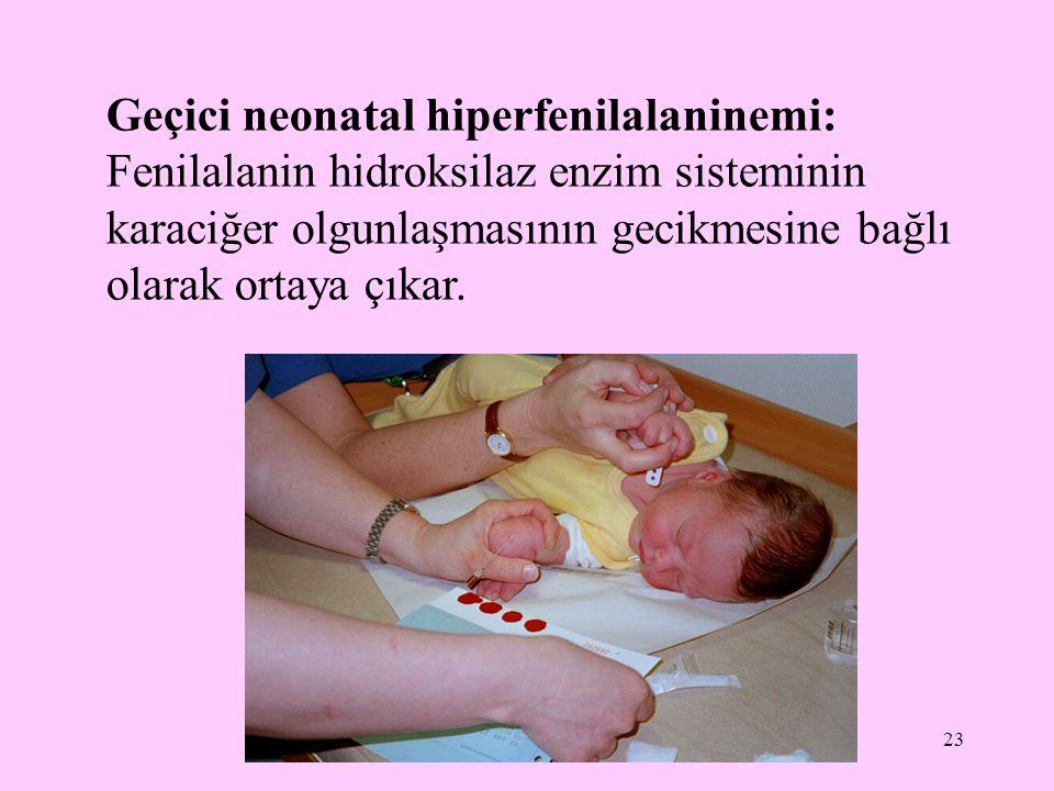 23 Geçici neonatal hiperfenilalaninemi: Fenilalanin hidroksilaz enzim sisteminin karaciğer olgunlaşmasının gecikmesine bağlı olarak ortaya çıkar.