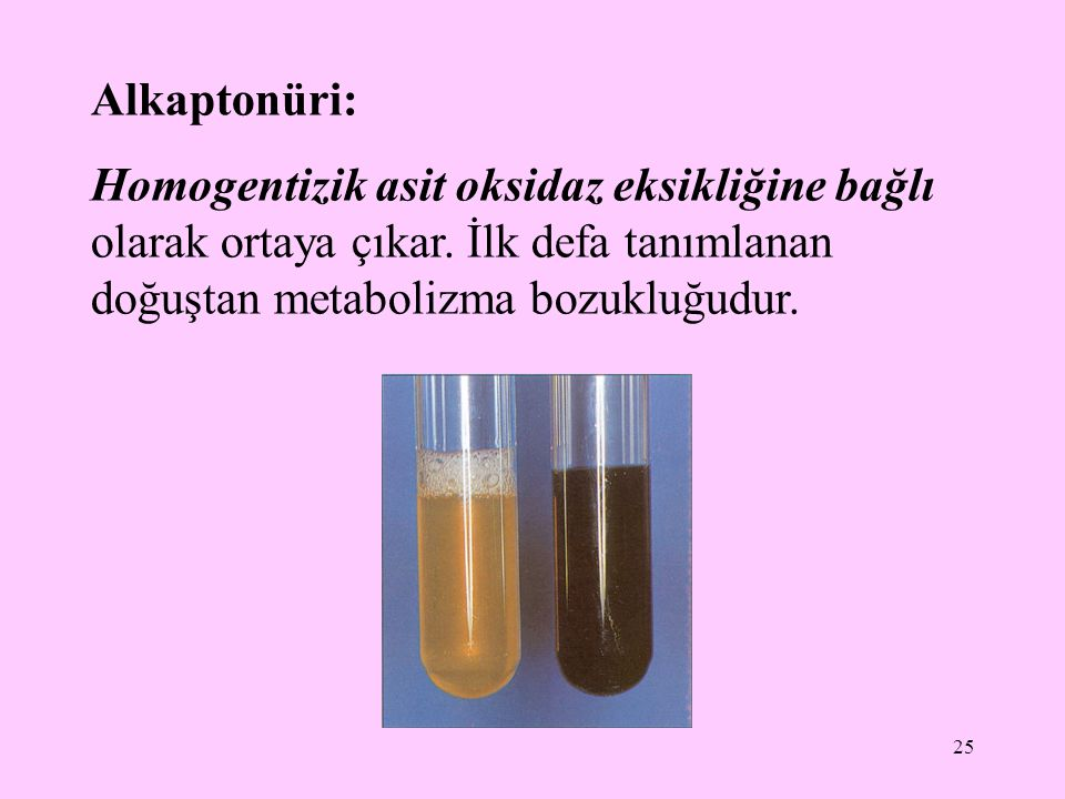 25 Alkaptonüri: Homogentizik asit oksidaz eksikliğine bağlı olarak ortaya çıkar. İlk defa tanımlanan doğuştan metabolizma bozukluğudur.