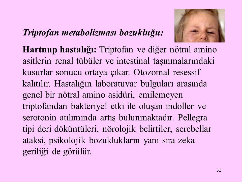 32 Triptofan metabolizması bozukluğu: Hartnup hastalığı: Triptofan ve diğer nötral amino asitlerin renal tübüler ve intestinal taşınmalarındaki kusurl