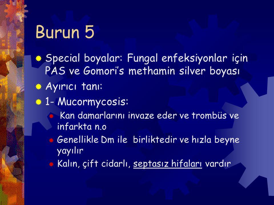 Burun 5  Special boyalar: Fungal enfeksiyonlar için PAS ve Gomori's methamin silver boyası  Ayırıcı tanı:  1- Mucormycosis:  Kan damarlarını invaze eder ve trombüs ve infarkta n.o  Genellikle Dm ile birliktedir ve hızla beyne yayılır  Kalın, çift cidarlı, septasız hifaları vardır