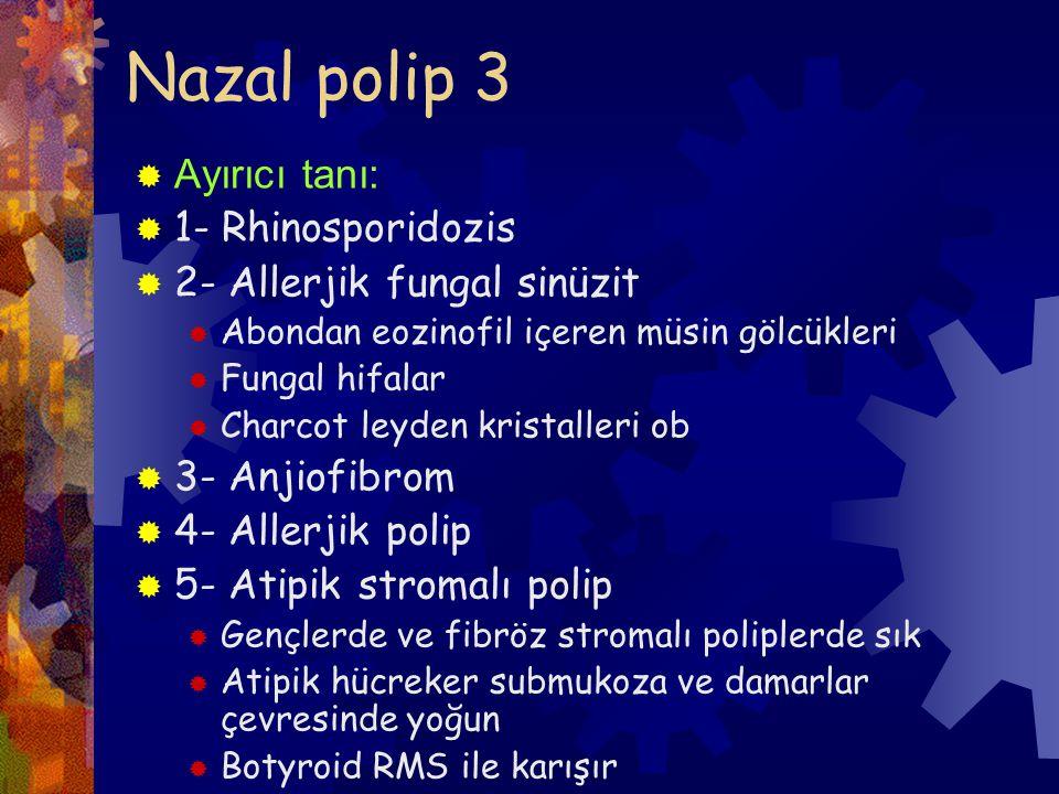 Nazal polip 3  Ayırıcı tanı:  1- Rhinosporidozis  2- Allerjik fungal sinüzit  Abondan eozinofil içeren müsin gölcükleri  Fungal hifalar  Charcot leyden kristalleri ob  3- Anjiofibrom  4- Allerjik polip  5- Atipik stromalı polip  Gençlerde ve fibröz stromalı poliplerde sık  Atipik hücreker submukoza ve damarlar çevresinde yoğun  Botyroid RMS ile karışır