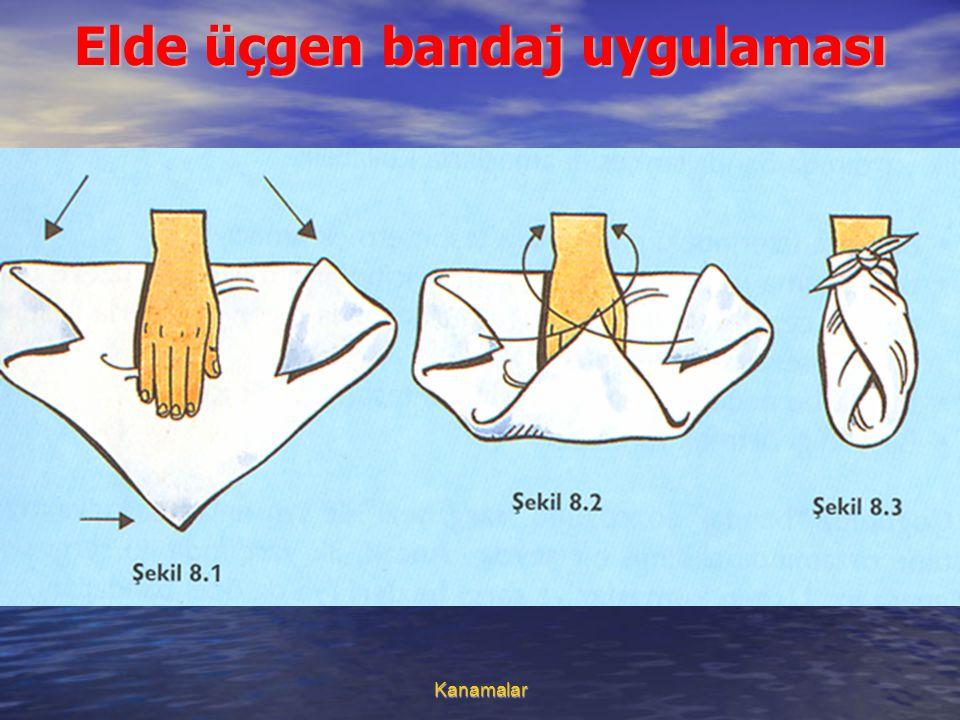 Kanamalar Elde üçgen bandaj uygulaması