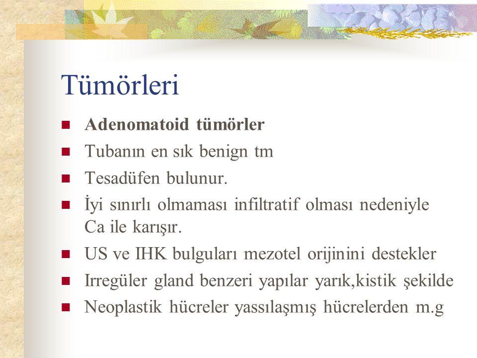 Tümörleri Adenomatoid tümörler Tubanın en sık benign tm Tesadüfen bulunur.