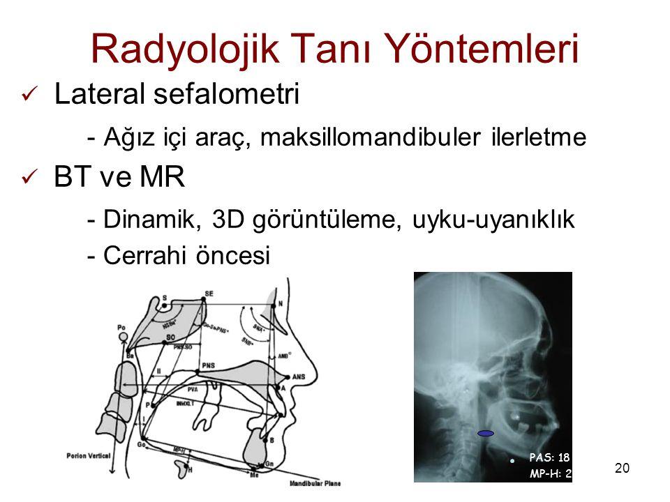 20 Radyolojik Tanı Yöntemleri Lateral sefalometri - Ağız içi araç, maksillomandibuler ilerletme BT ve MR - Dinamik, 3D görüntüleme, uyku-uyanıklık - C