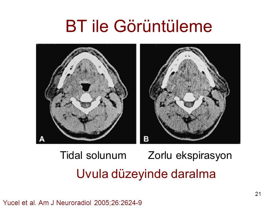 21 BT ile Görüntüleme Tidal solunum Zorlu ekspirasyon Uvula düzeyinde daralma Yucel et al. Am J Neuroradiol 2005;26:2624-9