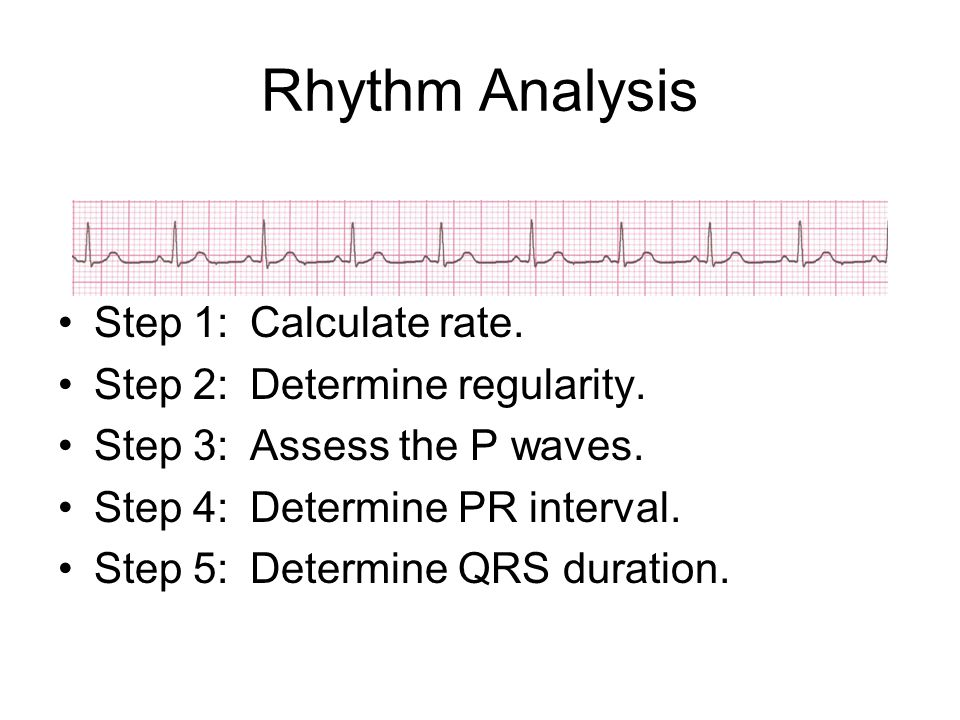 Rhythm Analysis Step 1:Calculate rate. Step 2:Determine regularity. Step 3:Assess the P waves. Step 4:Determine PR interval. Step 5:Determine QRS dura