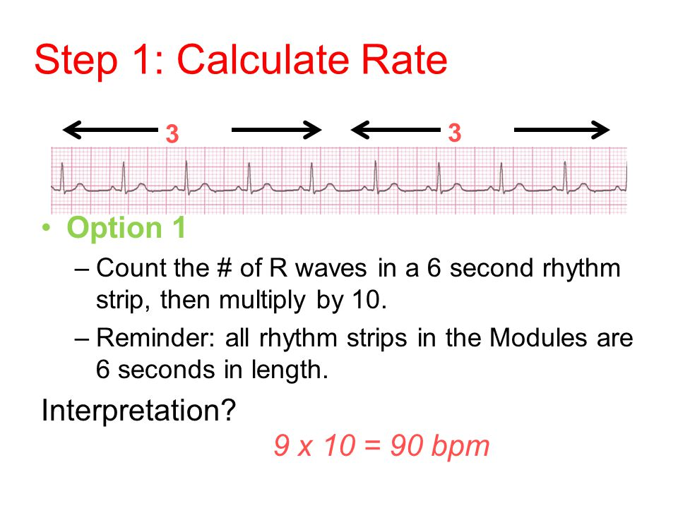 Step 1: Calculate Rate Option 1 –Count the # of R waves in a 6 second rhythm strip, then multiply by 10. –Reminder: all rhythm strips in the Modules a