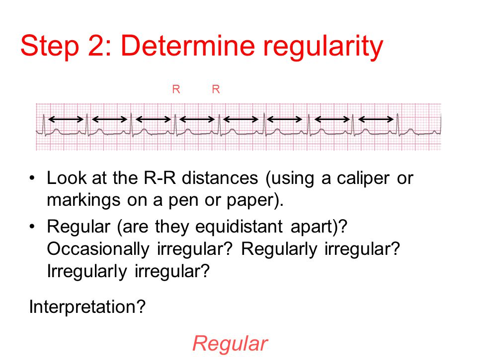 Step 2: Determine regularity Look at the R-R distances (using a caliper or markings on a pen or paper). Regular (are they equidistant apart)? Occasion