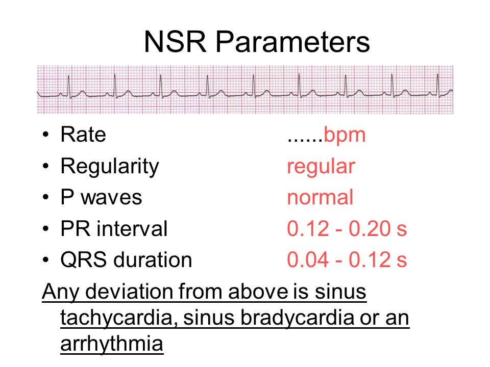 NSR Parameters Rate......bpm Regularityregular P wavesnormal PR interval0.12 - 0.20 s QRS duration0.04 - 0.12 s Any deviation from above is sinus tach