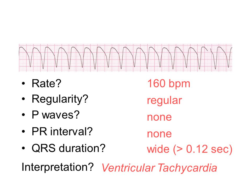 160 bpm Rate? Regularity? regular none wide (> 0.12 sec) P waves? PR interval? none QRS duration? Interpretation? Ventricular Tachycardia