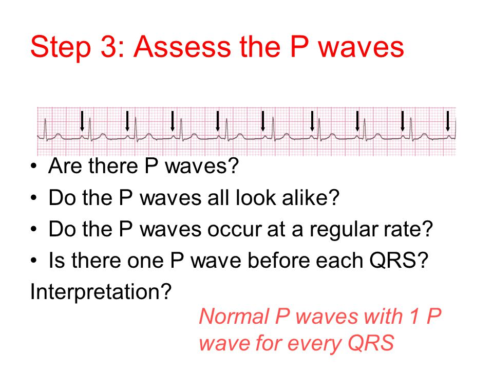 Step 3: Assess the P waves Are there P waves? Do the P waves all look alike? Do the P waves occur at a regular rate? Is there one P wave before each Q