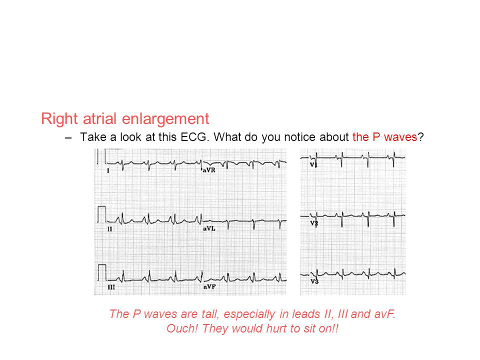 Right atrial enlargement –Take a look at this ECG. What do you notice about the P waves? The P waves are tall, especially in leads II, III and avF. Ou