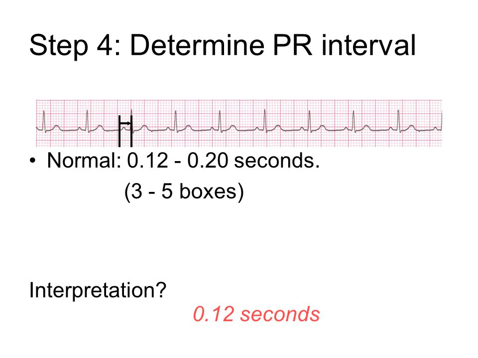 Step 4: Determine PR interval Normal: 0.12 - 0.20 seconds. (3 - 5 boxes) Interpretation? 0.12 seconds