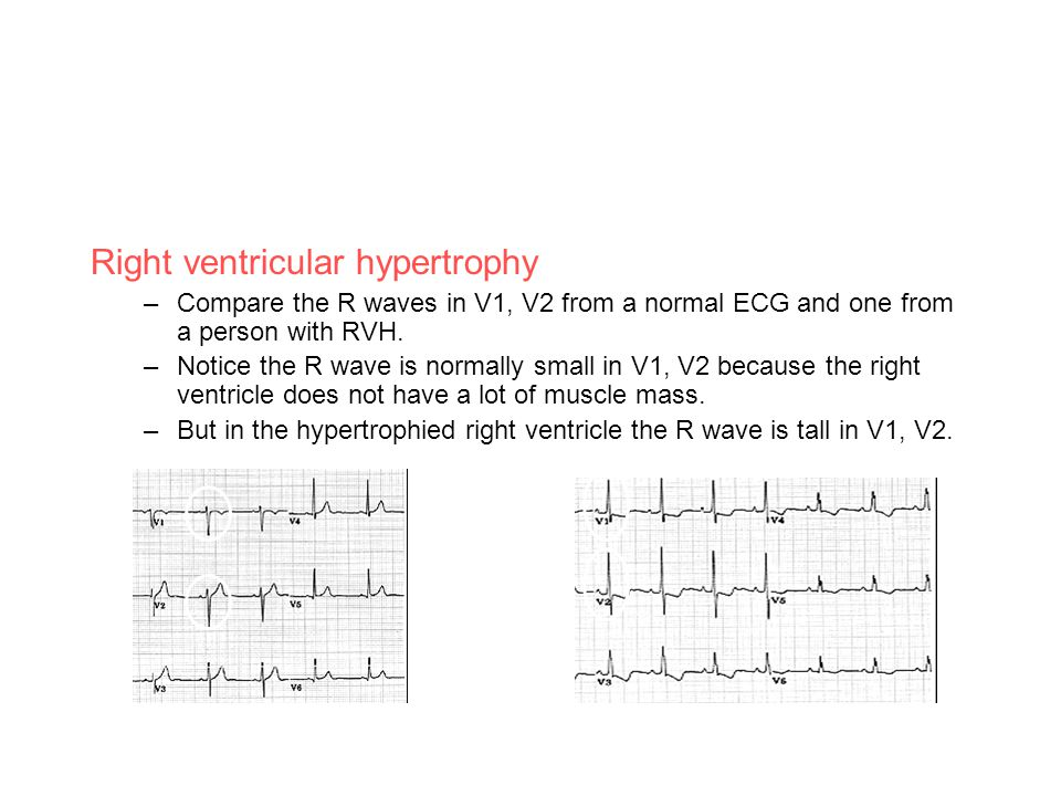 Right ventricular hypertrophy –Compare the R waves in V1, V2 from a normal ECG and one from a person with RVH. –Notice the R wave is normally small in