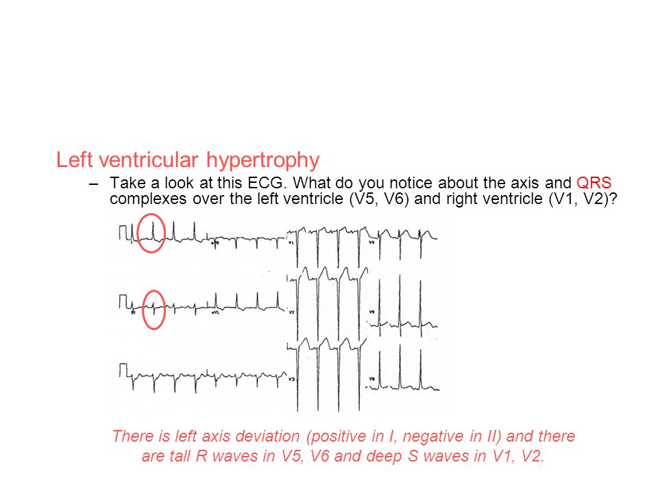Left ventricular hypertrophy –Take a look at this ECG. What do you notice about the axis and QRS complexes over the left ventricle (V5, V6) and right