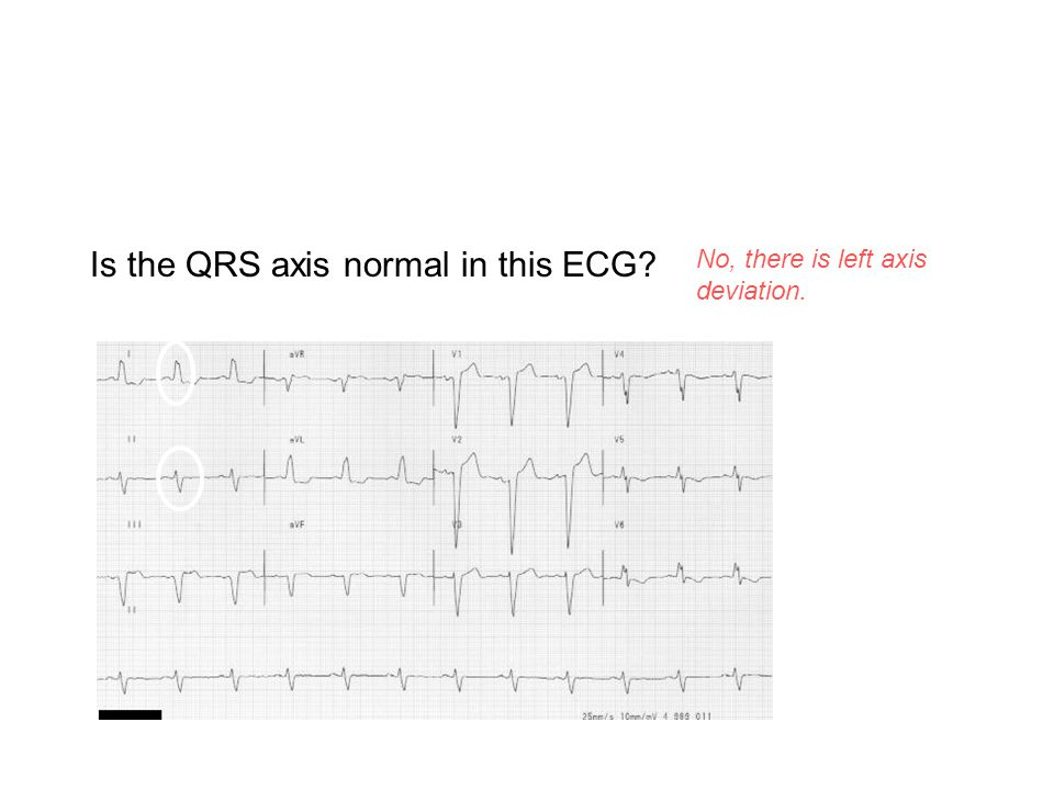 Is the QRS axis normal in this ECG? No, there is left axis deviation. The QRS is positive in I and negative in II.