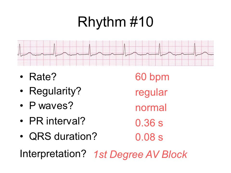 Rhythm #10 60 bpm Rate? Regularity? regular normal 0.08 s P waves? PR interval? 0.36 s QRS duration? Interpretation? 1st Degree AV Block