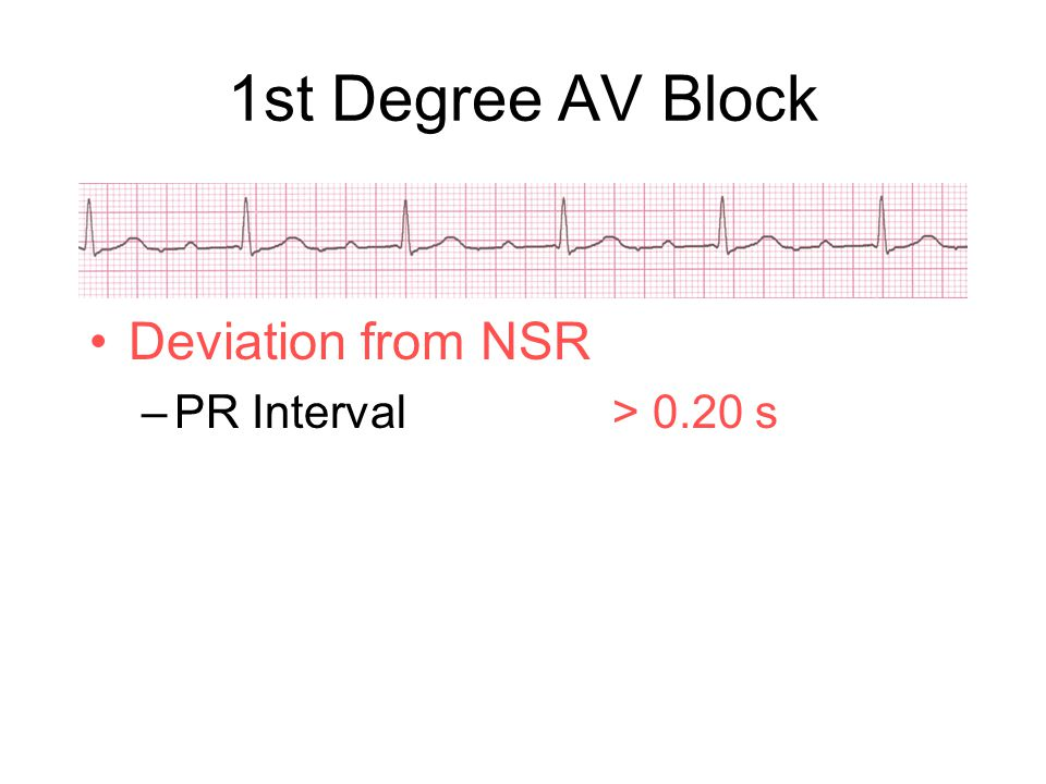 Deviation from NSR –PR Interval> 0.20 s