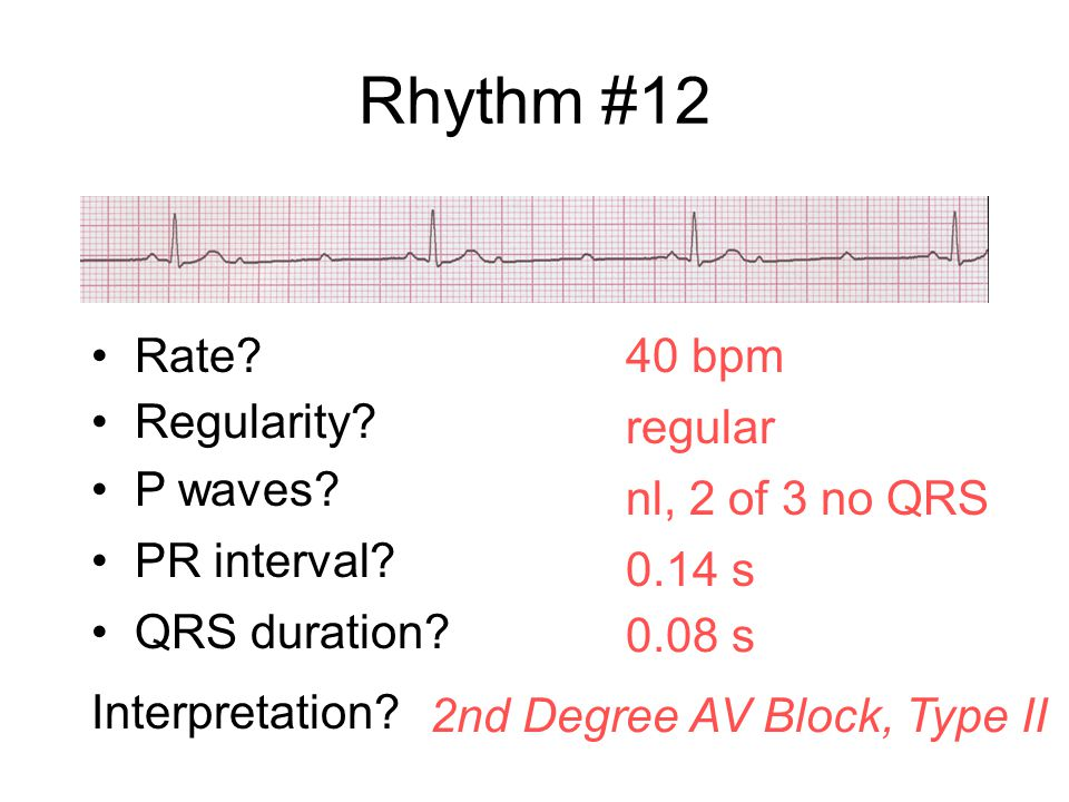 Rhythm #12 40 bpm Rate? Regularity? regular nl, 2 of 3 no QRS 0.08 s P waves? PR interval? 0.14 s QRS duration? Interpretation? 2nd Degree AV Block, T