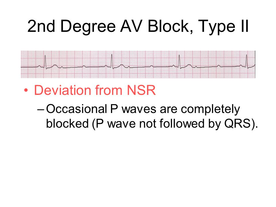 Deviation from NSR –Occasional P waves are completely blocked (P wave not followed by QRS).
