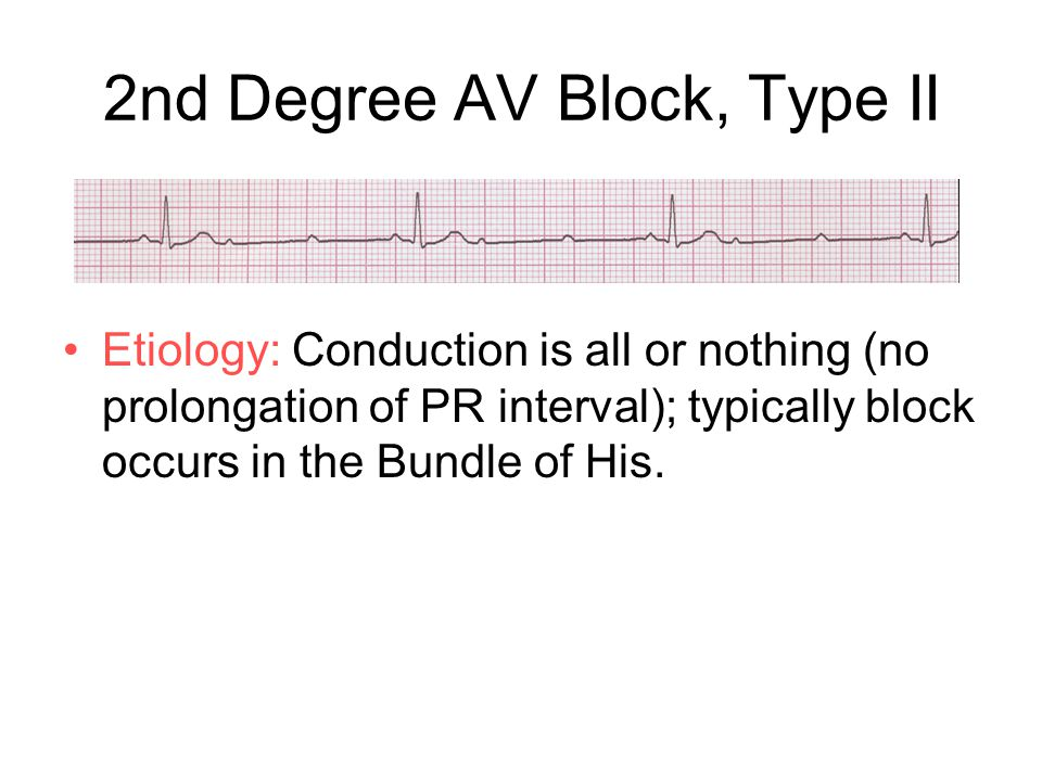 2nd Degree AV Block, Type II Etiology: Conduction is all or nothing (no prolongation of PR interval); typically block occurs in the Bundle of His.