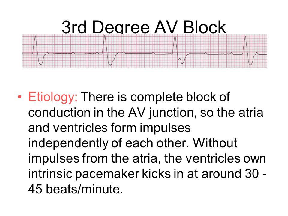 3rd Degree AV Block Etiology: There is complete block of conduction in the AV junction, so the atria and ventricles form impulses independently of eac