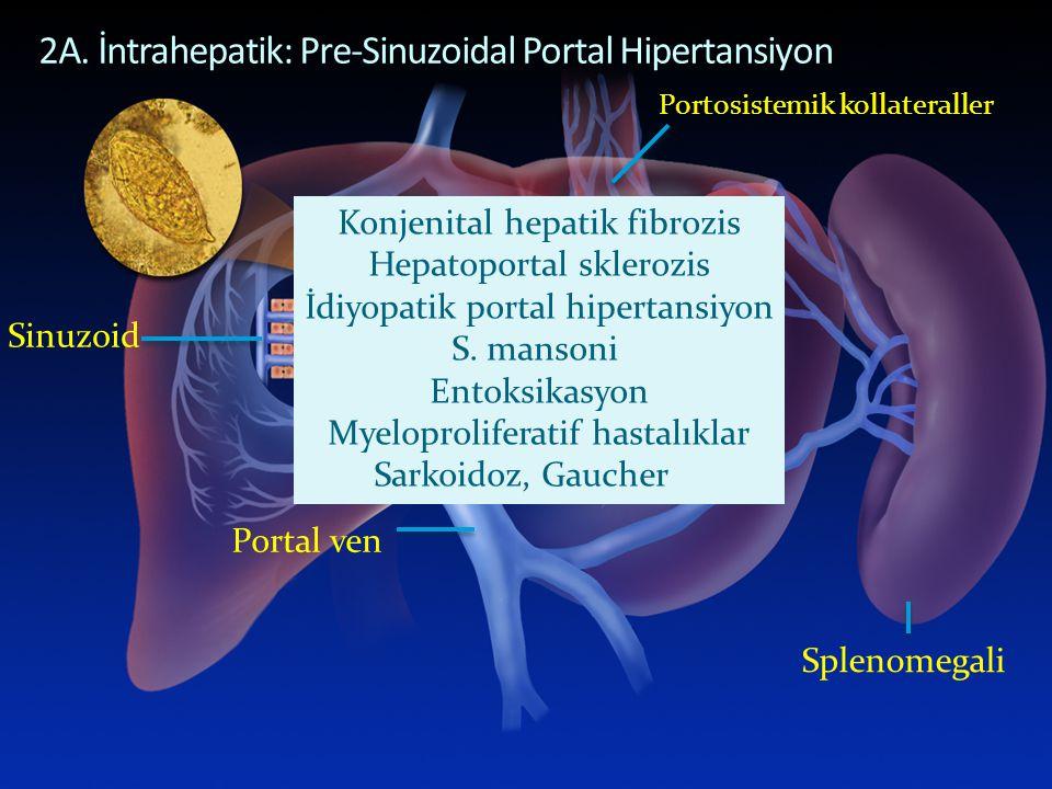 Portosistemik kollateraller 2A. İntrahepatik: Pre-Sinuzoidal Portal Hipertansiyon Sinuzoid Portal ven Splenomegali Konjenital hepatik fibrozis Hepatop