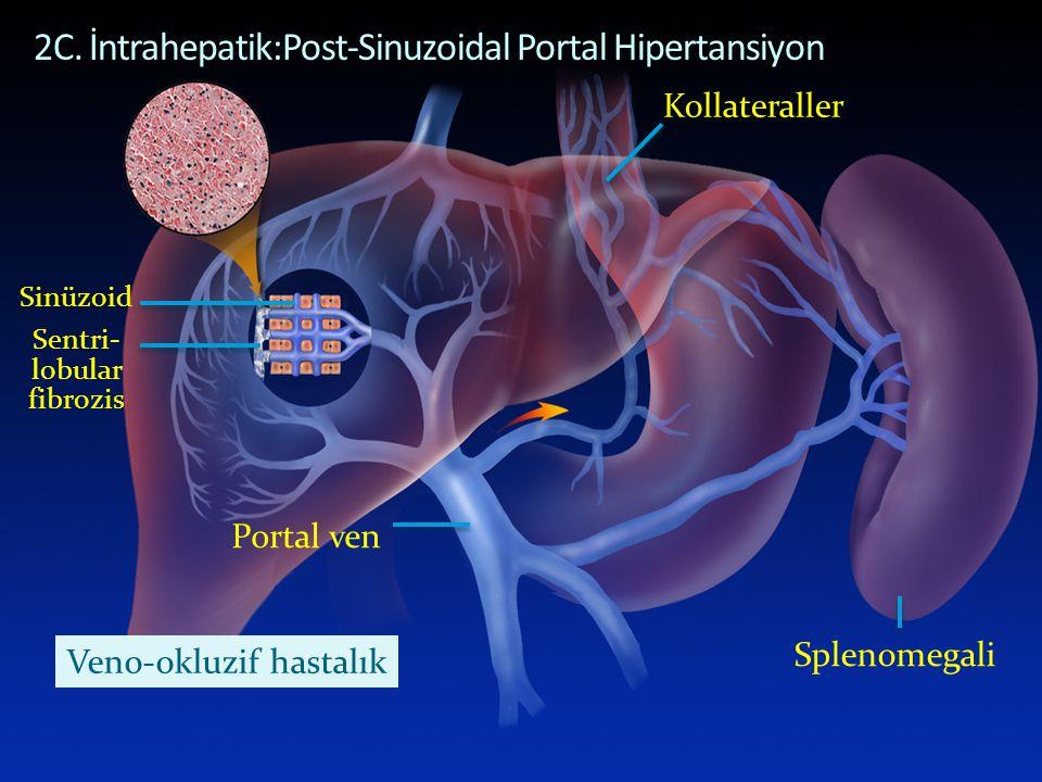 POST-SINUSOIDAL PORTAL HYPERTENSION 2C. İntrahepatik:Post-Sinuzoidal Portal Hipertansiyon Sinüzoid Portal ven Sentri- lobular fibrozis Kollateraller S