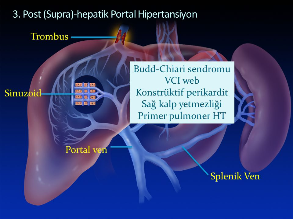 POST-HEPATIC PORTAL HYPERTENSION 3. Post (Supra)-hepatik Portal Hipertansiyon Trombus Portal ven Sinuzoid Budd-Chiari sendromu VCI web Konstrüktif per