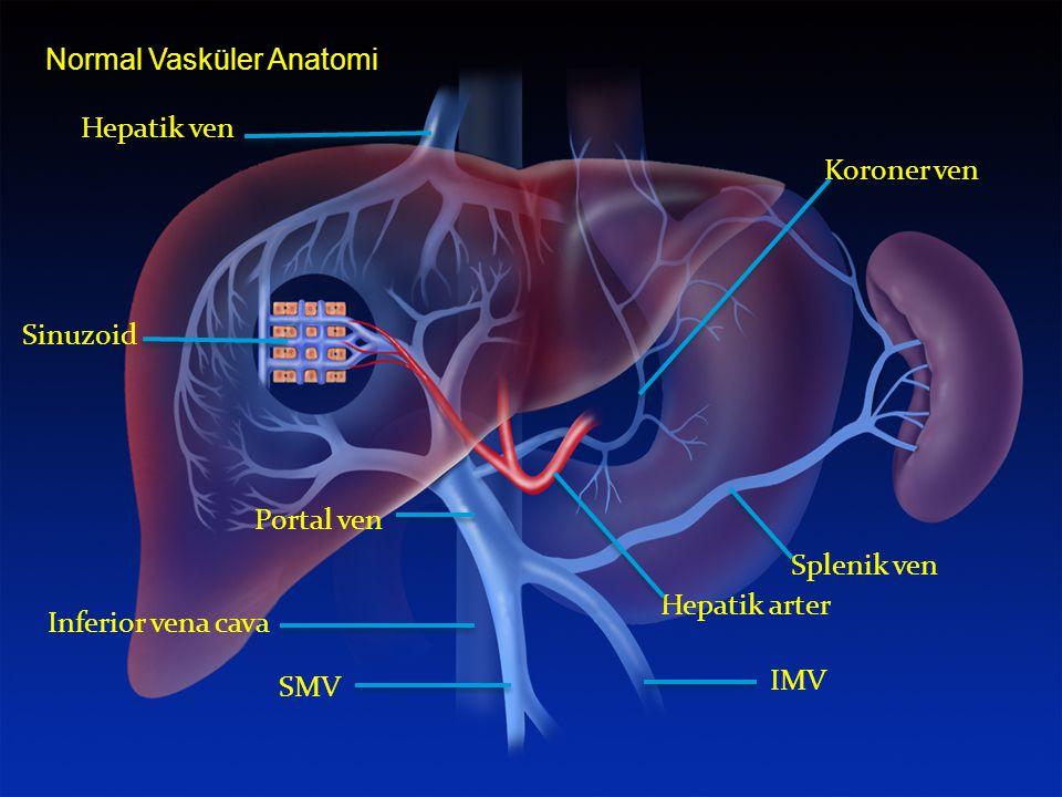 Normal Vasküler Anatomi Hepatik ven Sinuzoid Portal ven Hepatik arter Splenik ven Koroner ven Inferior vena cava IMV SMV