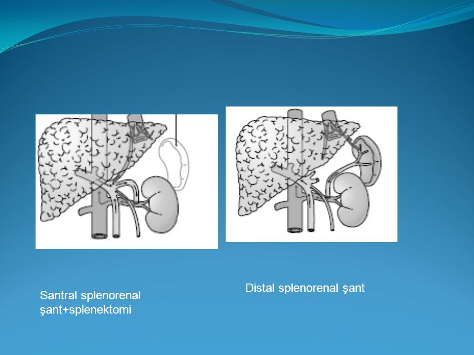 Santral splenorenal şant+splenektomi Distal splenorenal şant
