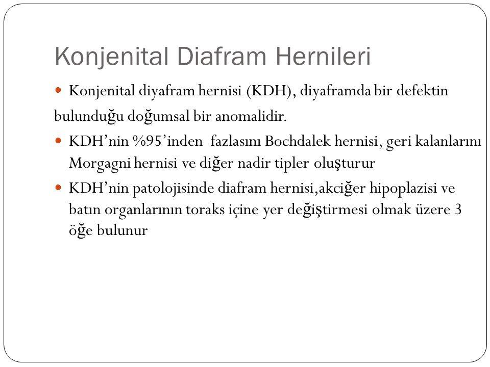 Konjenital Diafram Hernileri Konjenital diyafram hernisi (KDH), diyaframda bir defektin bulundu ğ u do ğ umsal bir anomalidir.