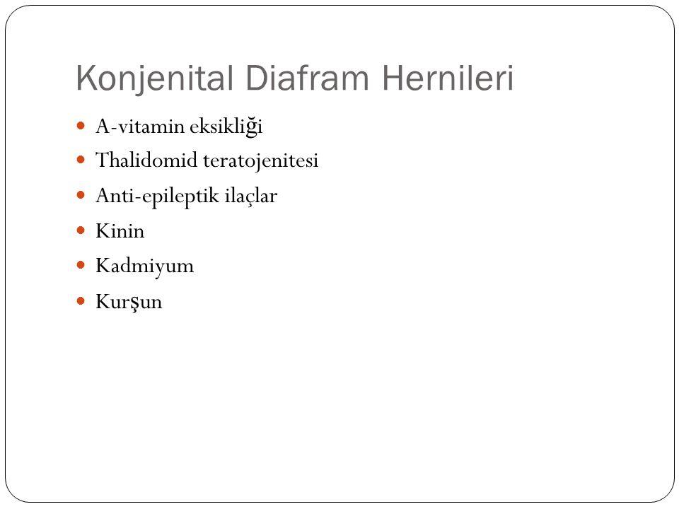 Konjenital Diafram Hernileri A-vitamin eksikli ğ i Thalidomid teratojenitesi Anti-epileptik ilaçlar Kinin Kadmiyum Kur ş un