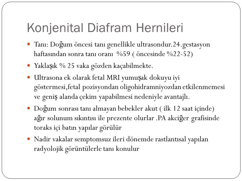 Konjenital Diafram Hernileri Tanı: Do ğ um öncesi tanı genellikle ultrasondur.24.gestasyon haftasından sonra tanı oranı %59 ( öncesinde %22-52) Yakla ş ık % 25 vaka gözden kaçabilmekte.