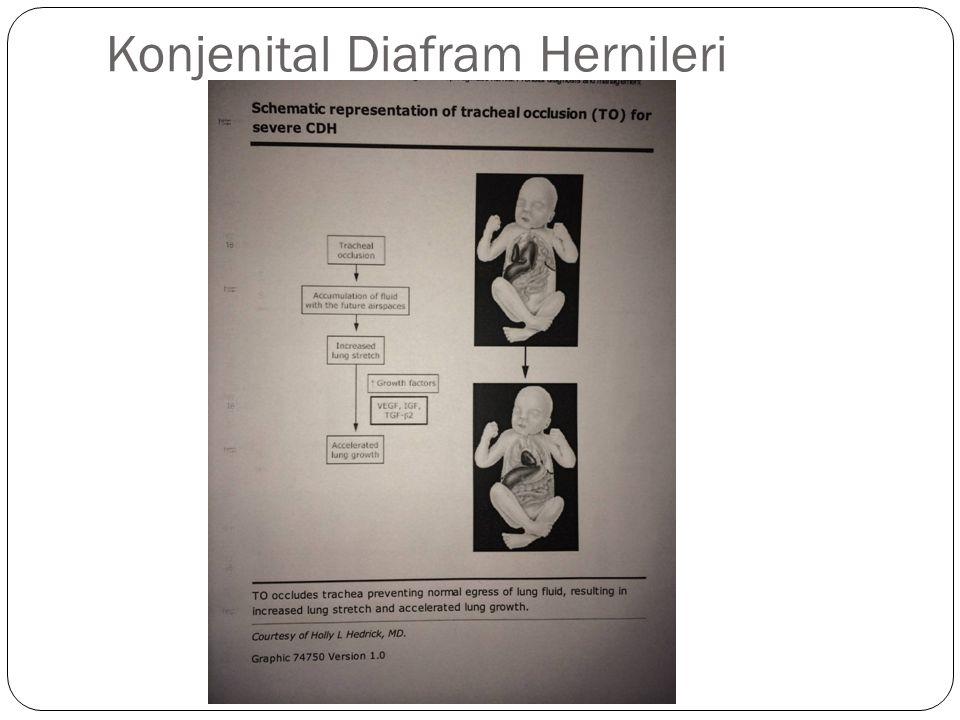 Konjenital Diafram Hernileri