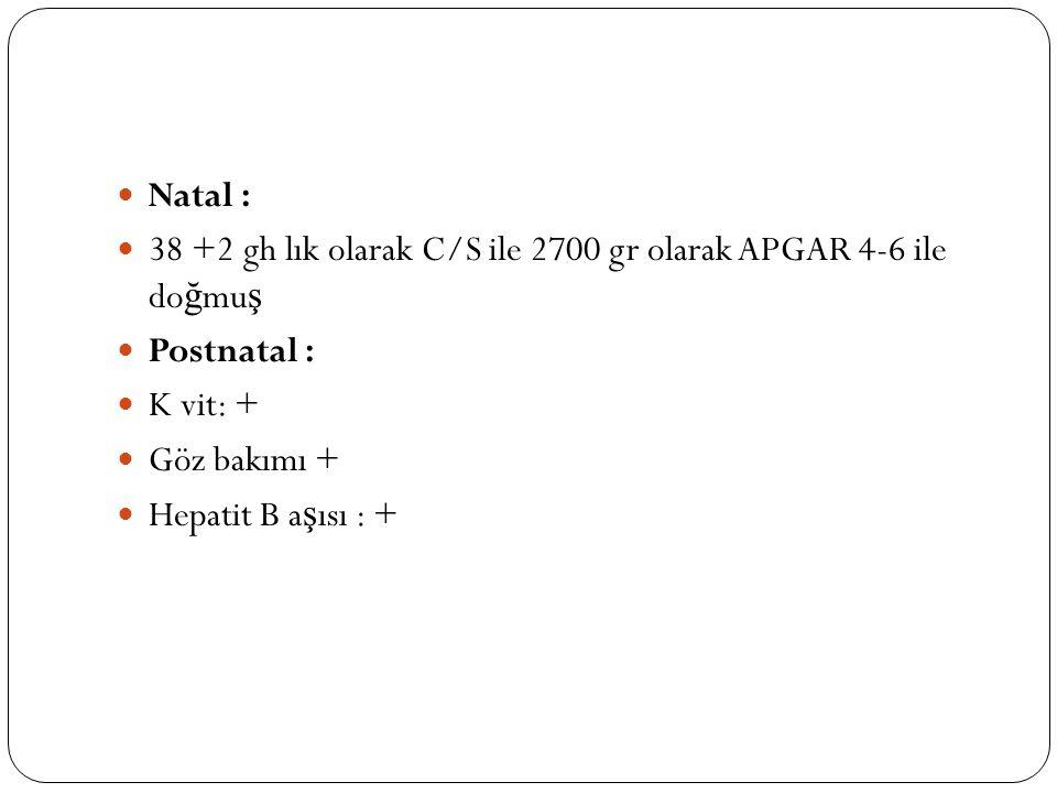 Natal : 38 +2 gh lık olarak C/S ile 2700 gr olarak APGAR 4-6 ile do ğ mu ş Postnatal : K vit: + Göz bakımı + Hepatit B a ş ısı : +