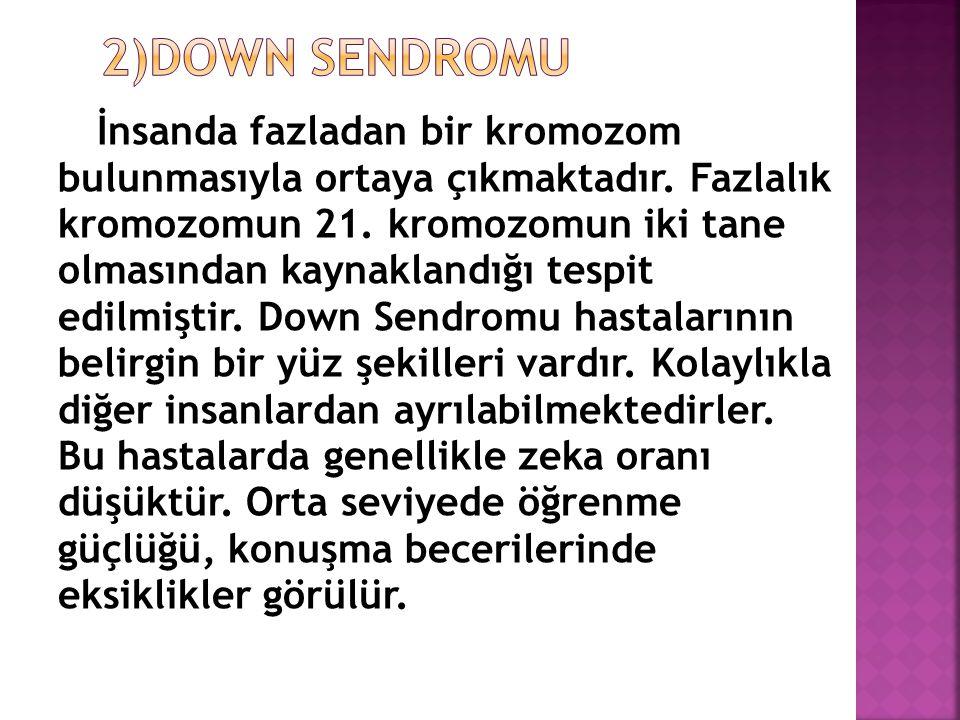İnsanda fazladan bir kromozom bulunmasıyla ortaya çıkmaktadır. Fazlalık kromozomun 21. kromozomun iki tane olmasından kaynaklandığı tespit edilmiştir.