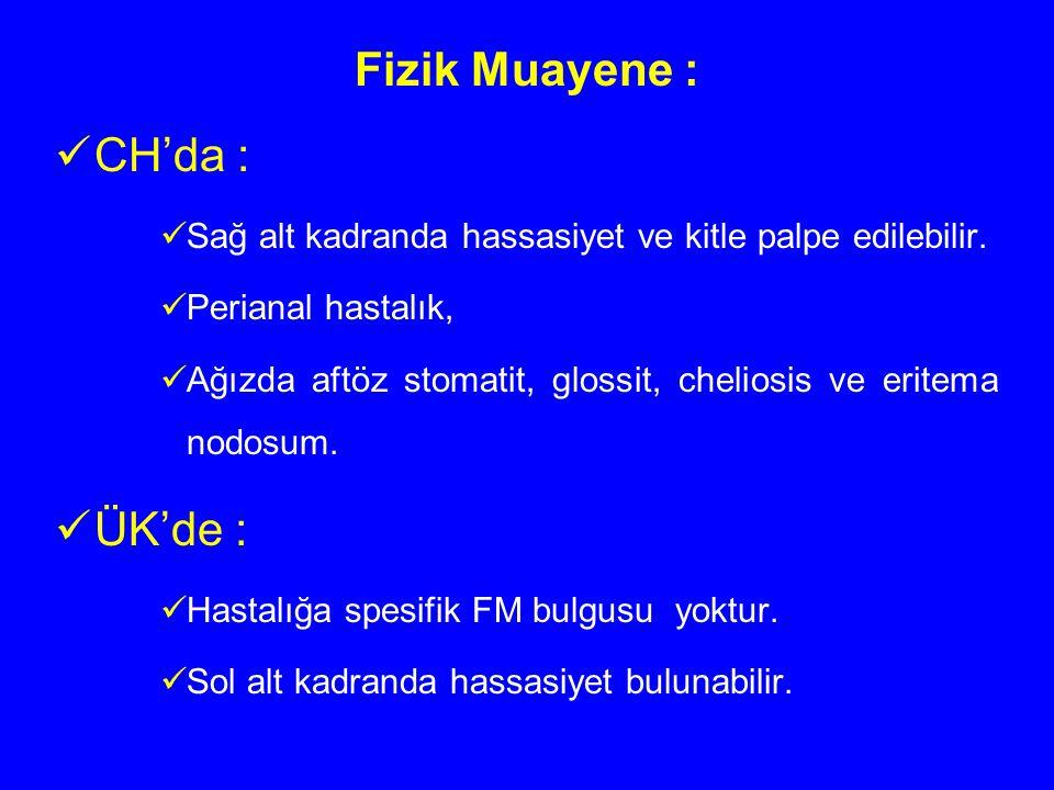 Fizik Muayene : CH'da : Sağ alt kadranda hassasiyet ve kitle palpe edilebilir. Perianal hastalık, Ağızda aftöz stomatit, glossit, cheliosis ve eritema