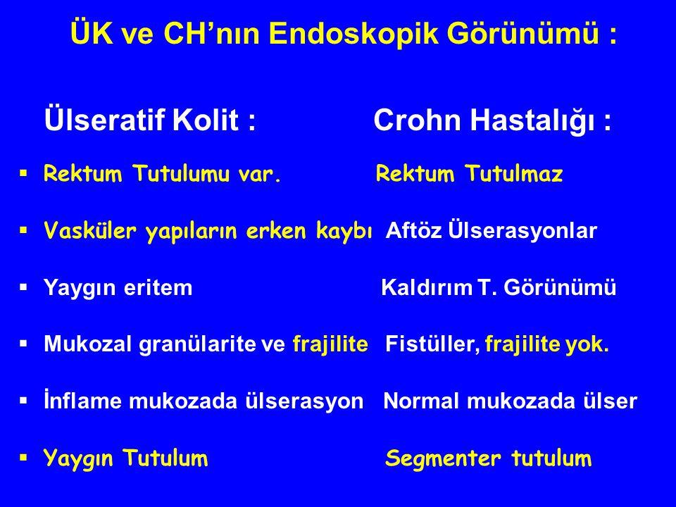 ÜK ve CH'nın Endoskopik Görünümü : Ülseratif Kolit : Crohn Hastalığı :  Rektum Tutulumu var. Rektum Tutulmaz  Vasküler yapıların erken kaybı Aftöz Ü
