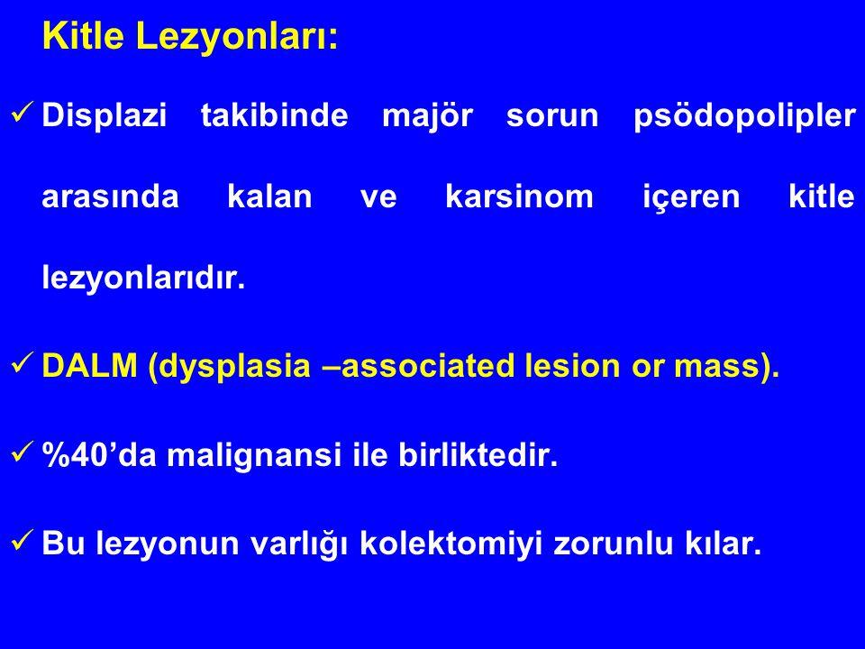 Kitle Lezyonları: Displazi takibinde majör sorun psödopolipler arasında kalan ve karsinom içeren kitle lezyonlarıdır. DALM (dysplasia –associated lesi