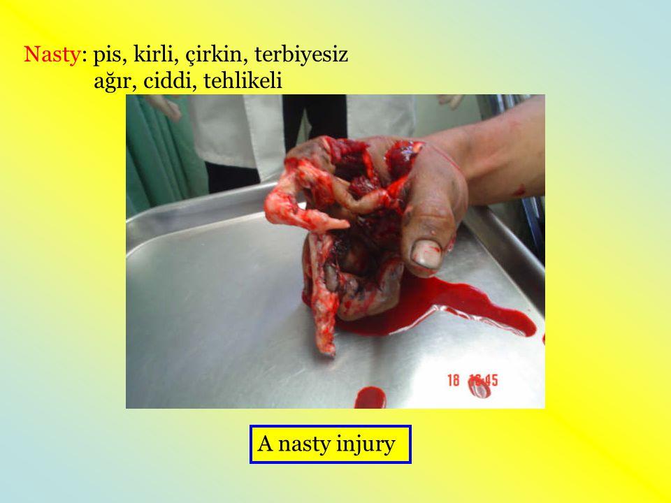Nasty: pis, kirli, çirkin, terbiyesiz ağır, ciddi, tehlikeli A nasty injury