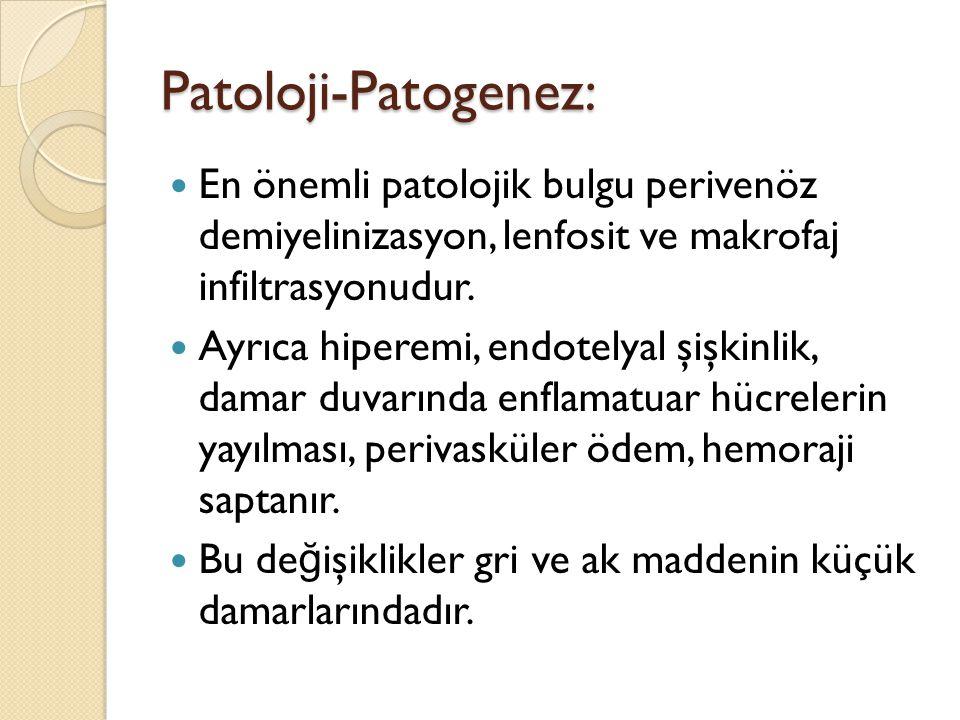 Patoloji-Patogenez: En önemli patolojik bulgu perivenöz demiyelinizasyon, lenfosit ve makrofaj infiltrasyonudur. Ayrıca hiperemi, endotelyal şişkinlik