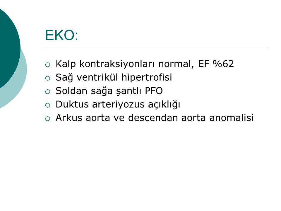 EKO:  Kalp kontraksiyonları normal, EF %62  Sağ ventrikül hipertrofisi  Soldan sağa şantlı PFO  Duktus arteriyozus açıklığı  Arkus aorta ve descendan aorta anomalisi