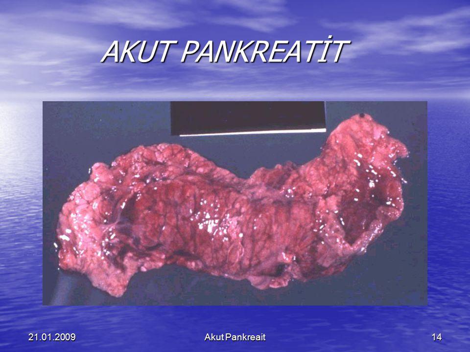 21.01.2009Akut Pankreait14 AKUT PANKREATİT AKUT PANKREATİT