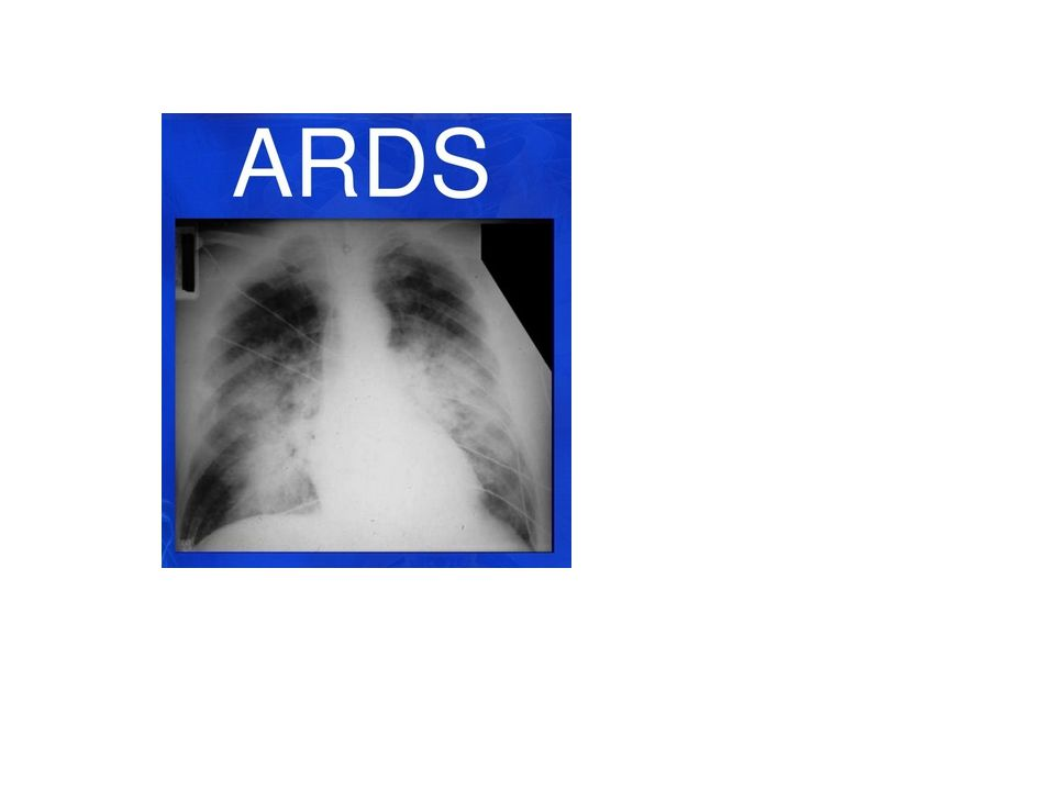 Theoretical use to ↓inflammatory response associated with ARDS 2006 study No ↓60 day mortality (28.6% vs 29.2% p= 0.10) Use of steroids 14+ days post onset: ↑ mortality ↓ need for vasopressors ↑ ventilator and shock free days ↑ neuromuscular weakness Short term improvement in oxygenation