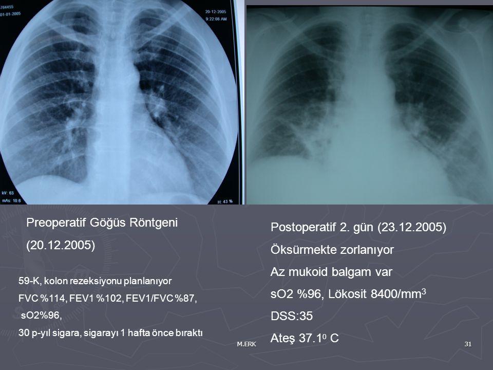 M.ERK31 Preoperatif Göğüs Röntgeni (20.12.2005) 59-K, kolon rezeksiyonu planlanıyor FVC %114, FEV1 %102, FEV1/FVC %87, sO2%96, 30 p-yıl sigara, sigara