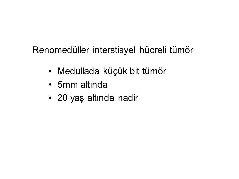 Renomedüller interstisyel hücreli tümör Medullada küçük bit tümör 5mm altında 20 yaş altında nadir