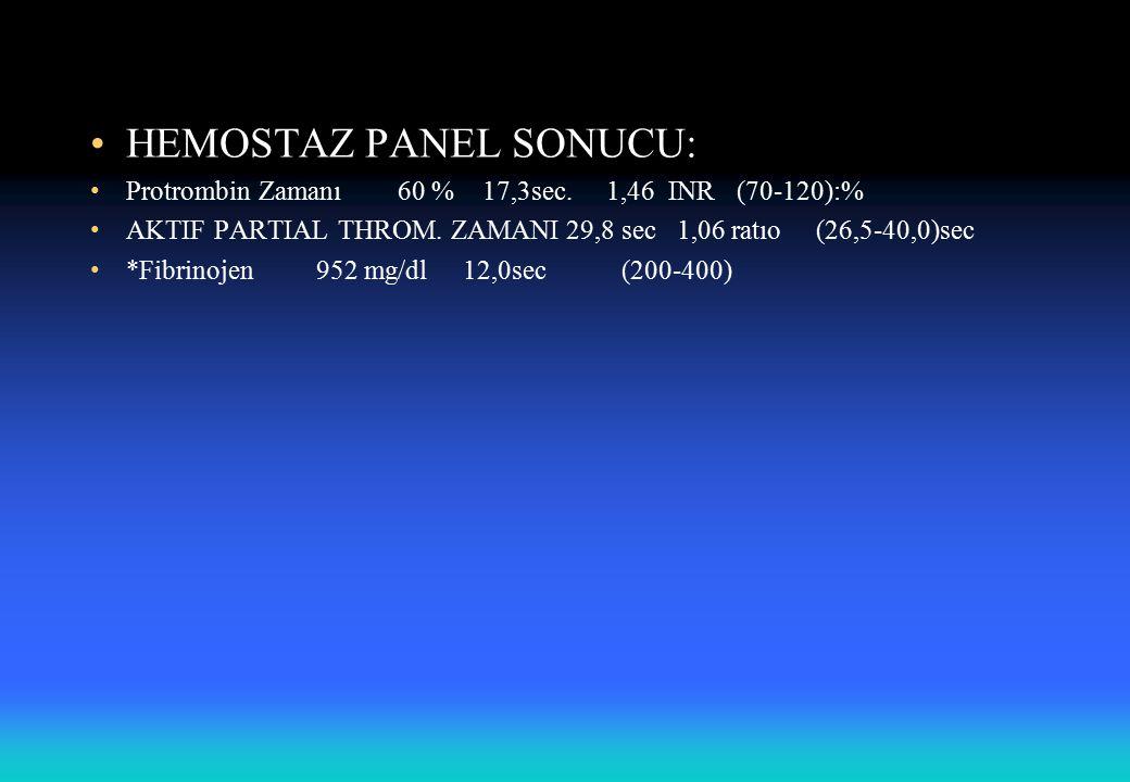 HEMOSTAZ PANEL SONUCU: Protrombin Zamanı 60 % 17,3sec.