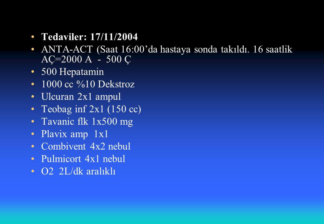 Tedaviler: 17/11/2004 ANTA-ACT (Saat 16:00'da hastaya sonda takıldı. 16 saatlik AÇ=2000 A - 500 Ç 500 Hepatamin 1000 cc %10 Dekstroz Ulcuran 2x1 ampul