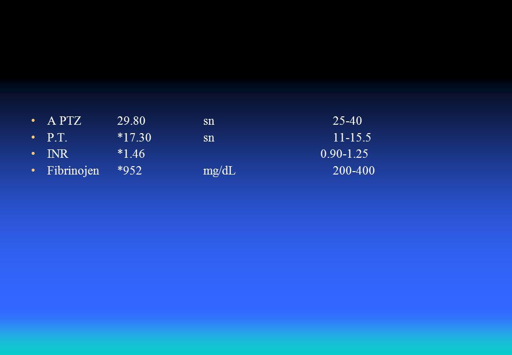 A PTZ29.80sn25-40 P.T.*17.30sn11-15.5 INR*1.46 0.90-1.25 Fibrinojen*952mg/dL200-400